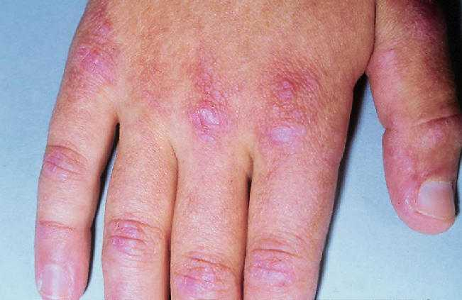 Seborrheic Dermatitis Photos - Dermatology Education