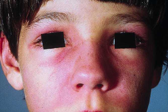 Dermatomyositis Pictures - picsearch.co.nl