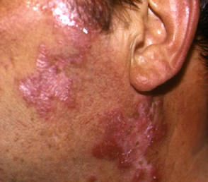 Lupus Pictures- Symptoms, Causes and treatment of Lupus rash - SLE