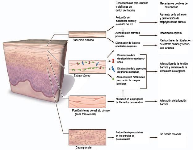 resumen de la clase de dermatitis atópica