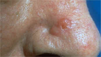 Basocelular nodular infiltrative carcinoma