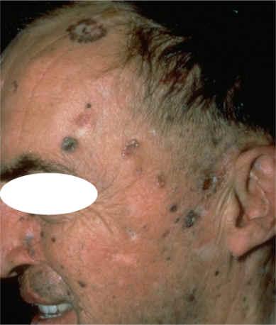 im225genes cl237nicas de tipos de carcinoma basocelular