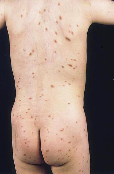 Urticaria Picture Image on MedicineNet.com