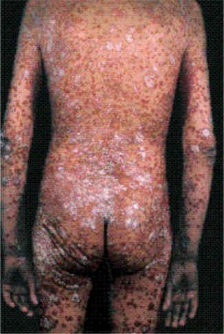 Del fumar y la psoriasis