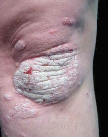 Asd para el tratamiento de la psoriasis el esquema