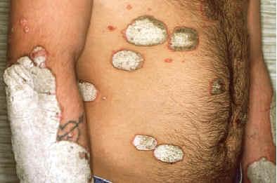 La aguaturma para el tratamiento de la psoriasis