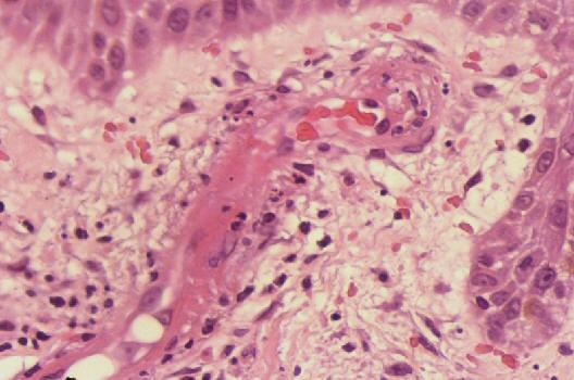 infiltracion intraarticular de esteroides