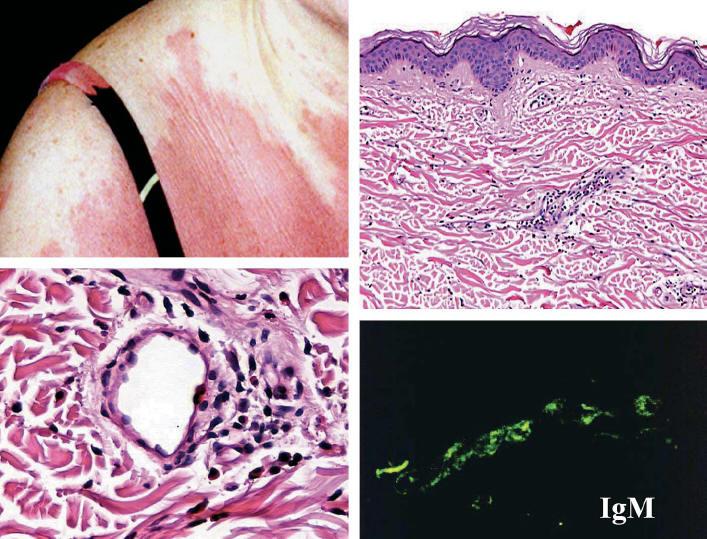 Urticarial Vasculitis Histology Immunoreactants  mostly c3 orUrticarial Vasculitis Bruising