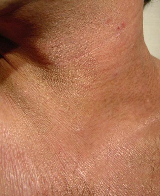Las clínicas en moskve por el tratamiento de la psoriasis