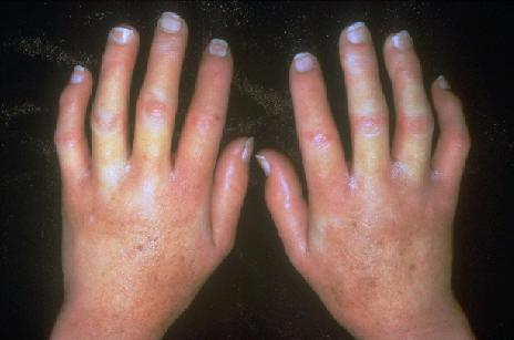 cantidades normales de acido urico niveles de acido urico en liquido sinovial remedio para aliviar crise de gota