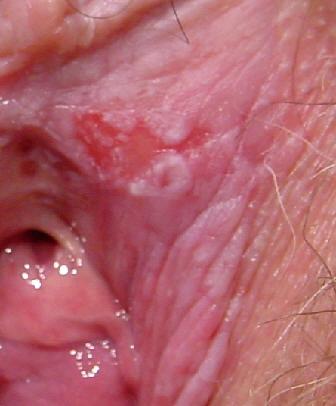 Lesiones benignas de vulva vagina y cervix - loaicigacom