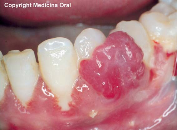imagen carcinoma epidermoide boca: