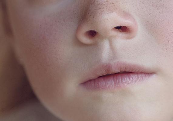 Disfemia: causas, evolución y tratamiento