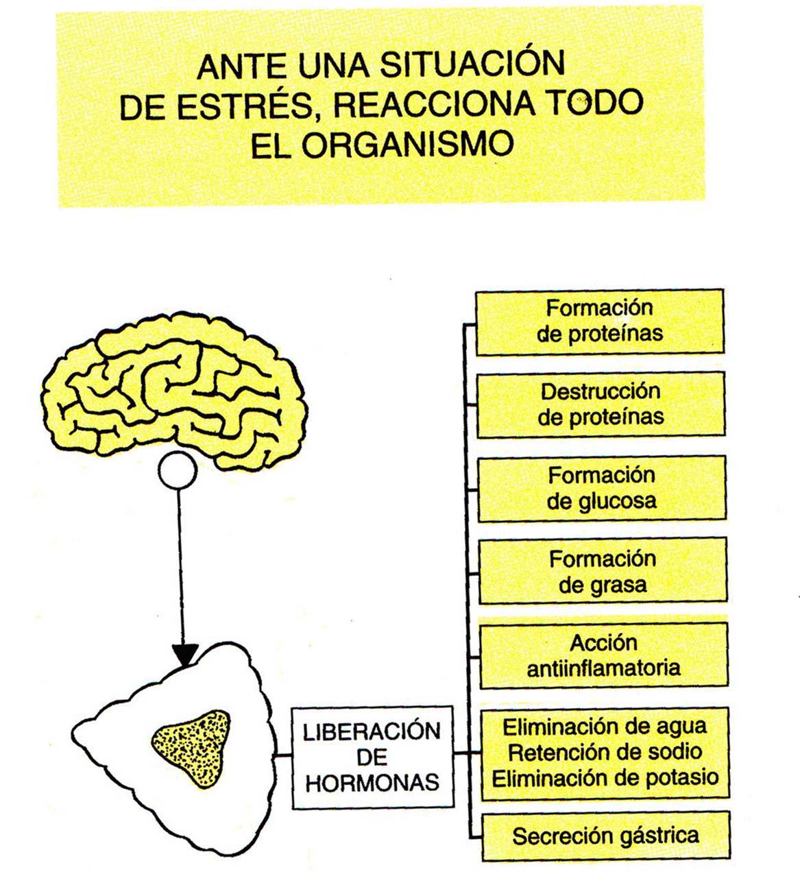par��lisis cerebral