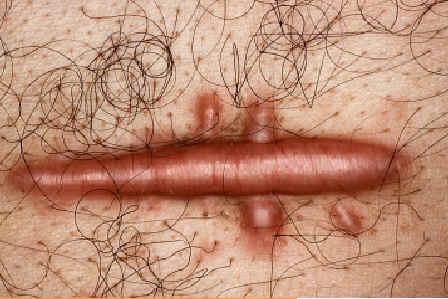 Queloide. Tumor benigno de consistencia dura pruriginoso aparecido tras una pequeña intervención quirúrgica. Lachapelle JM: Atlas de Dermatología. UCB pharmaceuticals